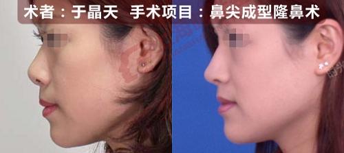 鼻尖成型隆鼻术手术前后效果对比图