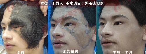 黑毛痣切除手术前后效果对比图
