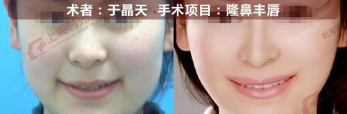隆鼻丰唇手术前后效果对比图