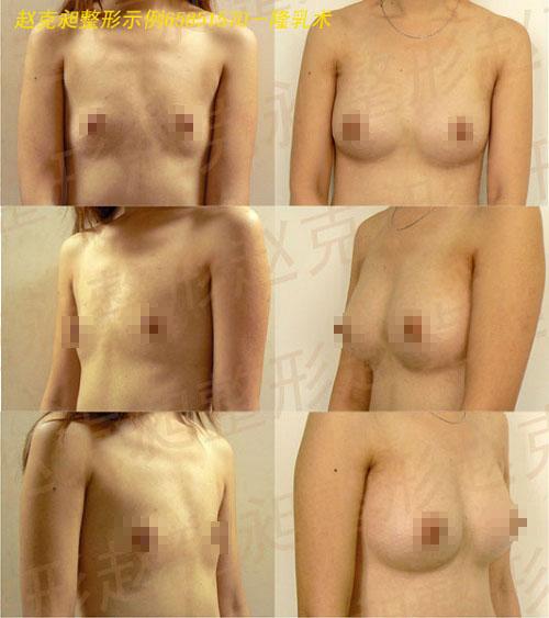 假体隆胸手术前后效果对比图8