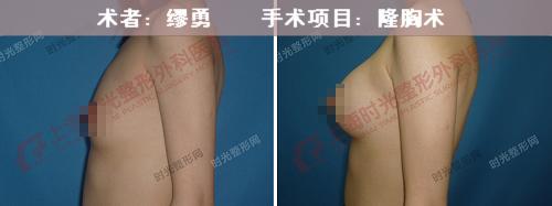 假体隆胸手术前后效果对比图9