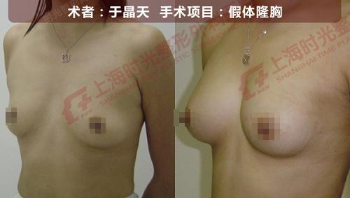 假体隆胸手术前后效果对比图10