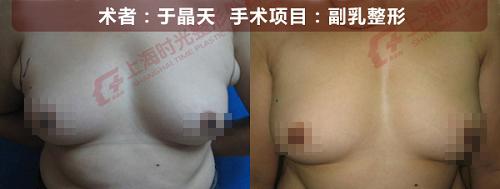 副乳整形手术前后效果对比图