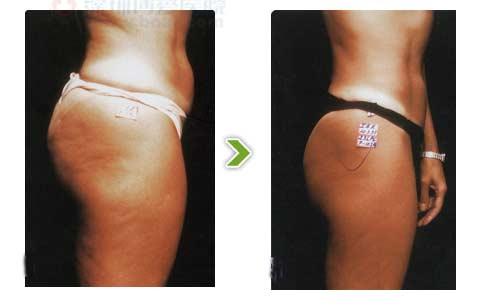 体外共振吸脂减肥前后对比图