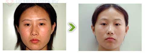 维纳斯祛斑手术前后对比图