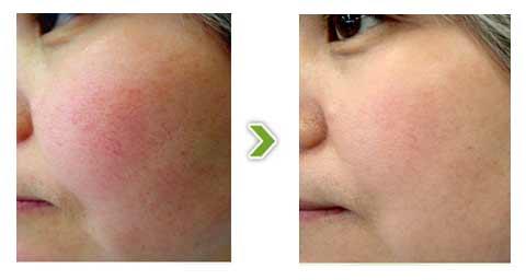 王者风范祛血管痣嫩肤手术前后对比图