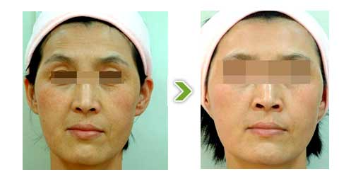 复合彩光嫩肤手术前后对比图一