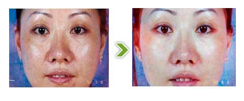 复合彩光嫩肤手术前后对比图二