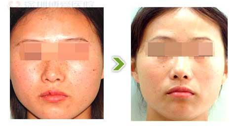 复合彩光嫩肤手术前后对比图三