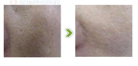 光子嫩肤对比图三