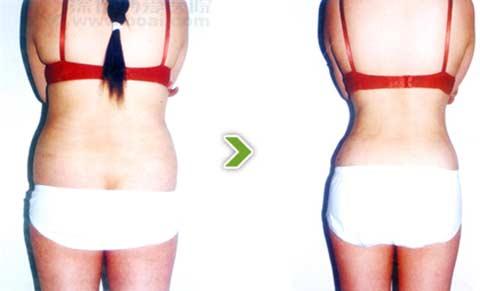 纤体瘦身前后对比图