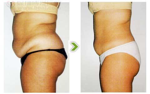 纤体瘦身前后对比图2