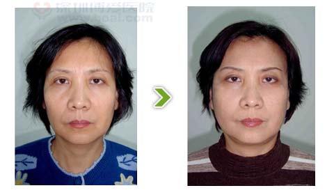 电波拉皮手术前后对比图之一