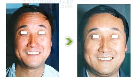 电波拉皮手术前后对比图之二