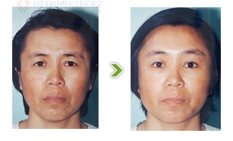 电波拉皮手术前后对比图之三