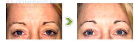 五爪拉皮手术前后对比图之三