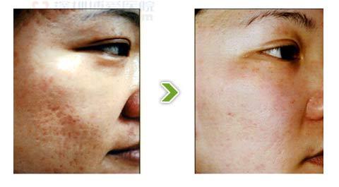 镭射1320除痘痘痕手术前后对比图