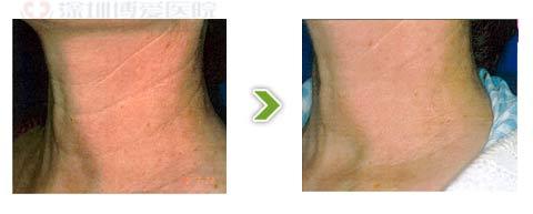 镭射1320除皱手术前后对比图之二