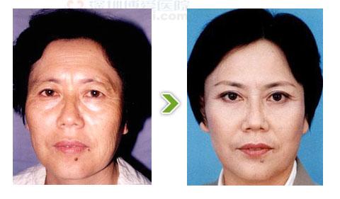 内窥镜除皱手术前后对比图之一
