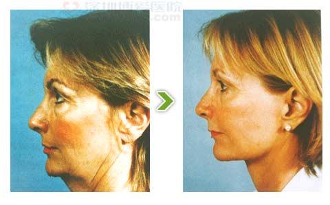 内窥镜除皱手术前后对比图之二