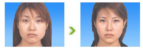 下颌角整形手术前后对比图(二)