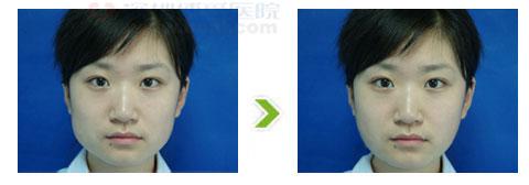 下颌角整形手术前后对比图(三)