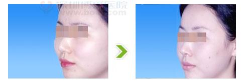 颧骨过高整形手术前后对比图(一)