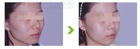 颧骨过高整形手术前后对比图(二)