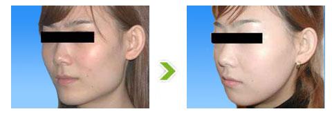 颧骨过高整形手术前后对比图(三)