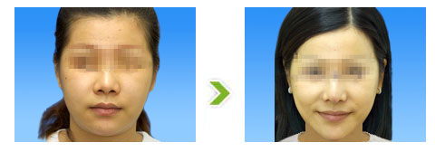 瘦脸术手术前后对比图(一)