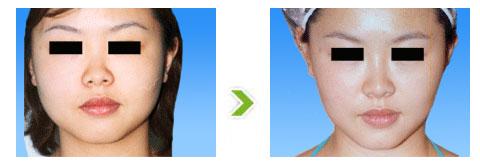瘦脸术手术前后对比图(二)