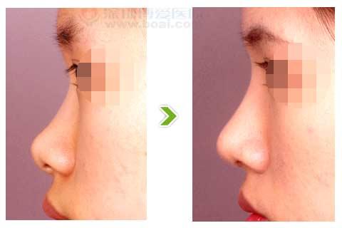 鼻梁低平,鼻尖上翘的整形手术前后对比图