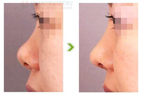鞍鼻整形手术前后对比图
