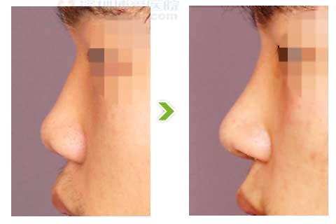 鞍鼻矫正术手术前后对比图