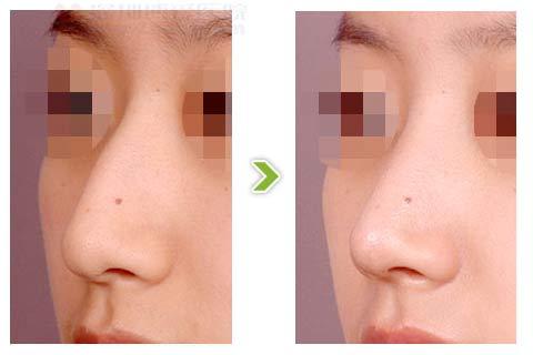 驼峰鼻整形手术前后对比图(一)