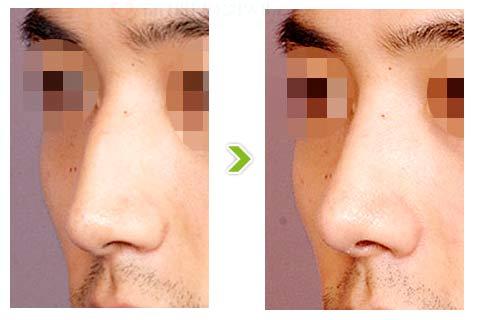 驼峰鼻整形手术前后对比图(二)