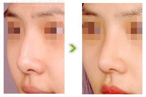驼峰鼻整形手术前后对比图(三)