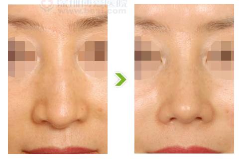鹰钩鼻整形手术前后对比图(一)