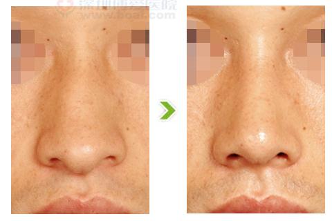 鹰钩鼻整形手术前后对比图(二)