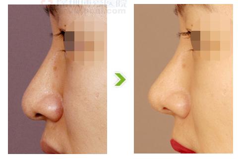 鹰钩鼻整形手术前后对比图(三)