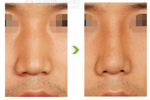 宽鼻整形手术前后对比图(一)
