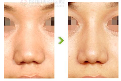宽鼻整形手术前后对比图(二)