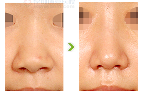 宽鼻整形手术前后对比图(三)