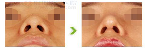 鼻尖肥厚整形手术前后对比图(一)