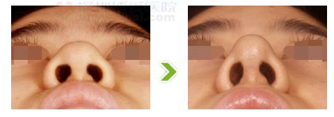鼻尖肥厚整形手术前后对比图(二)