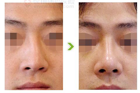 歪鼻整形手术前后对比图(一)