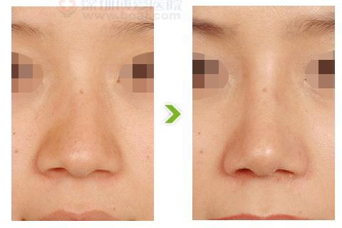 歪鼻整形手术前后对比图(二)