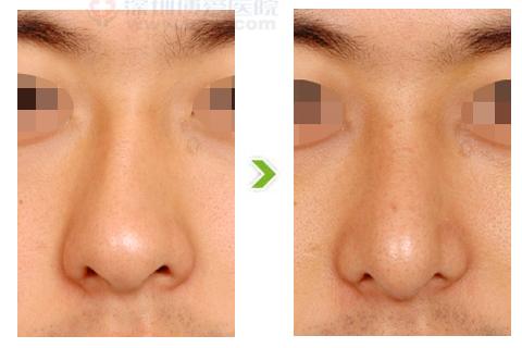 歪鼻整形手术前后对比图(三)