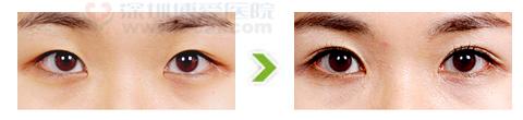 双眼皮术合内眦开大手术前后对比图