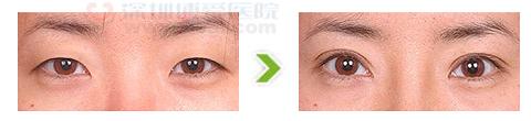 双眼皮术小眼变大眼手术前后对比图